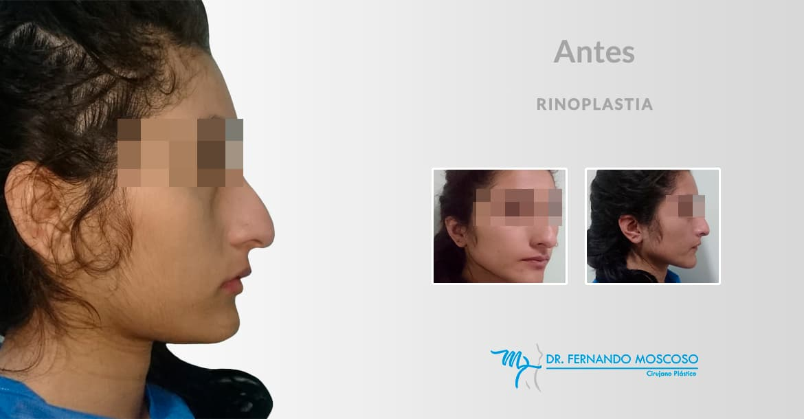 Before-Rinoplatia