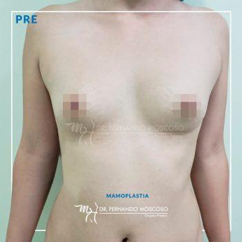 mamoplastia 01