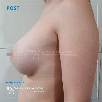 mamoplastia03