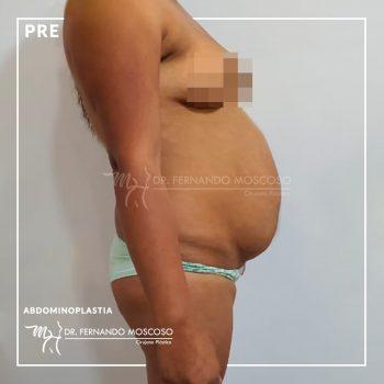 moscoso-abdominoplastia 02 antes
