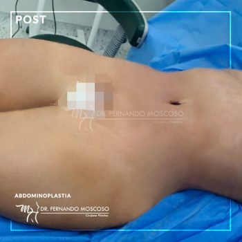 moscoso-abdominoplastia 02 despues