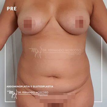 moscoso-abdominoplastia gluteoplastia front 01