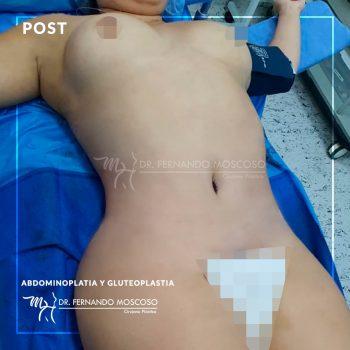 moscoso-abdominoplastia gluteoplastia front 02