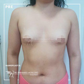 moscoso-mamoplastia aumento 01