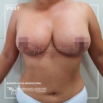 moscoso-mamoplastia-reduccion-despues-01_01