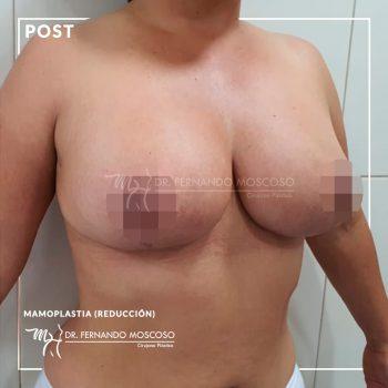 moscoso-mamoplastia-reduccion-despues-02_01