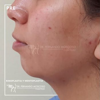 moscoso-rinoplastia y mentoplastia antes