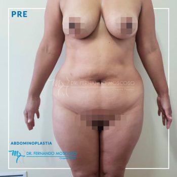 moscoso_abdominoplastia 01