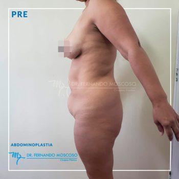 moscoso_abdominoplastia 02