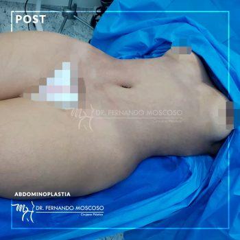moscoso_abdominoplastia 03