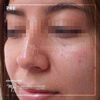 moscoso_caso rinoplastia antes 02