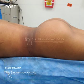 moscoso_gluteoplastia03