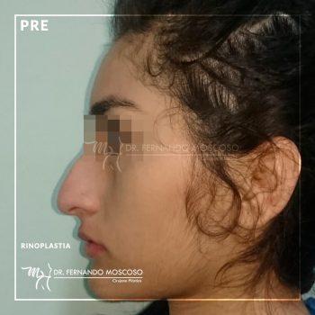 rinoplastia-nueva-02_01