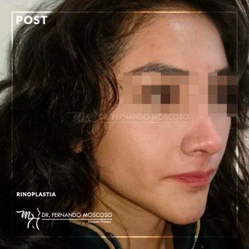 rinoplastia-nueva-03_01