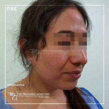 rinoplastia-nuevo-ver.01_01